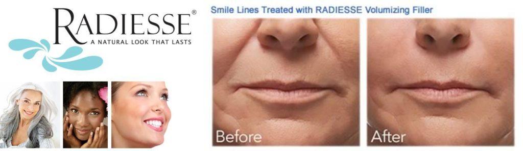 Radiesse - Perfect Lines